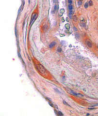 CSF1 in placenta